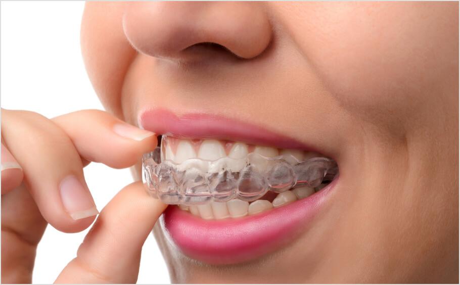 Straight-Teeth